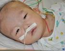 Tiếng kêu cứu của bé 11 tháng tuổi bị tim bẩm sinh thể phức tạp