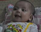 Thương bé 3 tháng tuổi mắc bệnh tim bẩm sinh nặng
