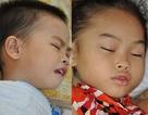 2 bé vùng cao nguy kịch vì bệnh viêm não Nhật Bản