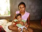 Sự sống mong manh của bé 2 tuổi bị nhiễm trùng máu