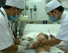 Theo dõi chặt ca tràn dịch dưỡng chấp màng phổi hiếm gặp