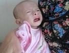 """Bé 6 tháng tuổi """"tiều tụy"""" vì bệnh suy dinh dưỡng, hở van tim"""