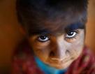 """Thăm gia đình """"người sói"""" ở Nepal"""