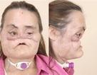 Gặp người phụ nữ đầu tiên được ghép mặt ở Mỹ