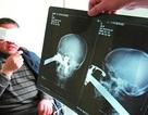 5 hình chụp X-quang kỳ dị nhất
