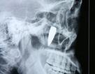 Gắp viên đạn nằm trong gò má 42 năm