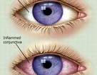 Đối phó dịch mắt đỏ đang bùng phát