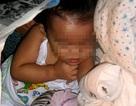 Bé 2 tuổi mất ngón tay vì máy xay thịt