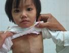 Mong manh trái tim bé bỏng của bé 3 tuổi