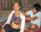 Cảm động cậu học trò bỏ học nuôi mẹ bị ung thư (Mã số 56)