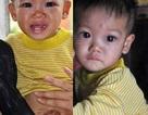 Cậu bé mồ côi 2 tuổi mắc bệnh hiểm nghèo
