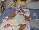 Bé 6 tháng tuổi bị viêm màng não mủ và nhiễm trùng huyết (Mã số 57)