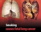 Lời cảnh báo trên vỏ bao thuốc không có tác dụng