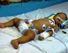 Bé 1 tuổi suýt tử vong vì hóc lạc