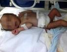 Cứu sống bé sơ sinh lòi gần nửa bộ ruột ra ngoài bụng