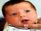 Em bé chào đời đã có răng
