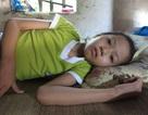 Đã 5 lần mổ, sự sống bé gái 10 tuổi vẫn mong manh