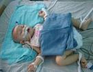 Cháu bé bị cha ném chấn thương sọ não đã xuất viện