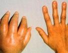 Hội chứng bí ẩn gây đau đớn hơn đau đẻ