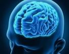 Khác biệt ở não của người bị rối loạn tâm thần