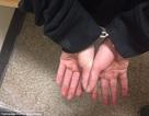 Tội phạm bị truy nã cắn nát đầu ngón tay để không bị nhận diện