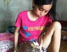 Cô gái có khối u khổng lồ ở bắp chân đã ra đi mãi mãi