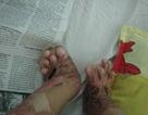 Di chứng kinh hoàng của hai mẹ con bị bỏng sau vụ cháy nhà