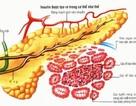 """""""U insulin"""" tuyến tụy: Thủ phạm gây hạ đường máu"""