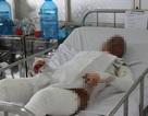 Cô gái bị người tình đổ xăng thiêu sống trong phòng trọ đã tử vong