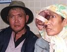 Người đàn bà khốn khổ với khối u khổng lồ trên mặt