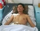 """""""Báo động đỏ"""" cứu sống bệnh nhân đa chấn thương nặng do bị bê tông lớn đè bụng"""