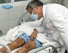 TPHCM: Nam thanh niên 21 tuổi bị nhiễm não mô cầu