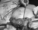 Đau nhức dữ dội hai bên vú vì hàng trăm khối u silicon