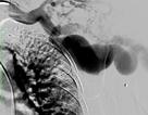 Mảnh đạn nằm trong cơ thể 43 năm xé rách mạch máu