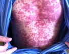Nổi ban đỏ, lột da khắp cơ thể vì dị ứng thuốc, mỹ phẩm
