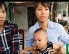 Thương bé 15 tháng tuổi bị bệnh tim bẩm sinh phức tạp