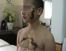 """Bài 1: Đề nghị khởi tố vụ cô gái bị xăm """"quái vật"""" vào mặt và ngực"""