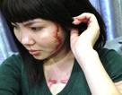 """Bài 6: Cô gái bị xăm """"quái vật"""" vào mặt và ngực mang thương tật 30%"""