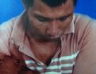 Đề nghị điều tra vụ xô xát tại huyện Kinh Môn