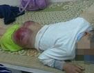 """Học sinh lớp 7 bị bố đánh dã man: Đừng quan niệm """"thương cho roi cho vọt"""""""