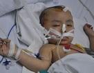 Bị sét đánh bất ngờ, mẹ chết, con 3 tuổi nguy kịch tính mạng
