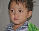 Run rẩy trước hình ảnh bé 2 tuổi đáng yêu sắp bị… khoét mắt