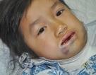 Thương bé 7 tuổi đau đớn vì bị dị dạng tĩnh mạch