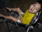 Thương cậu bé 7 tuổi bị viêm màng não co cứng sống dựa ông bà nghèo