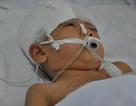 Bị chú vô tình bắn súng tự chế vào đầu, bé 6 tuổi người dân tộc Dao nguy kịch tính mạng