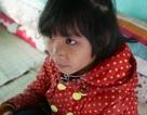Mồ côi cha mẹ, cô bé dân tộc Mông bị khuyết tật vẫn vượt núi đến trường