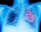 5 cách để giảm nguy cơ ung thư vú