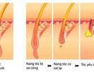 Điều trị rụng tóc: Nên lấy chân tóc làm gốc