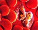 Hàng trăm ca tử vong vì sốt rét ác tính mỗi năm