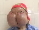 """Người phụ nữ """"đeo"""" 2 khối u khổng lồ trên mặt"""